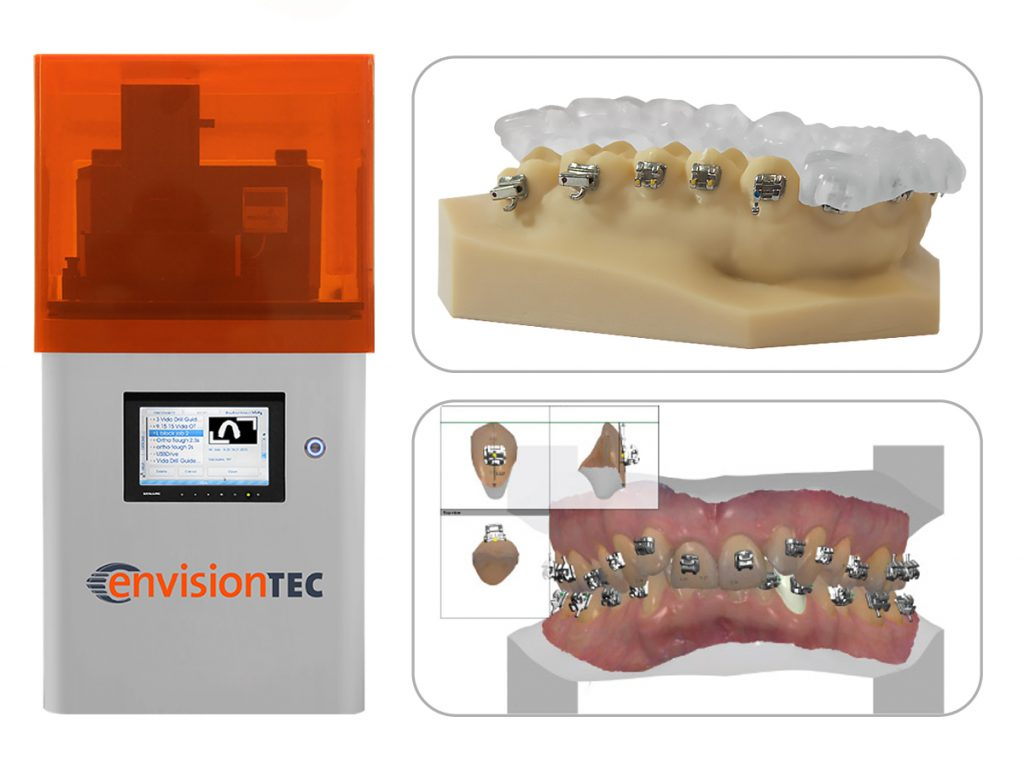 Indirect Bonding Trays 3D Printed by Envisiontec | Chemtron